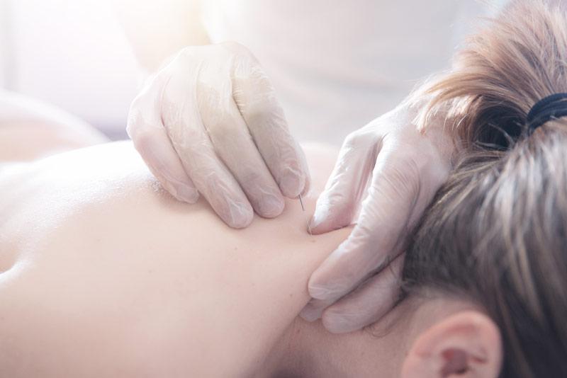 Técnicas de fisioterapia: Puntos gatillo y la punción seca