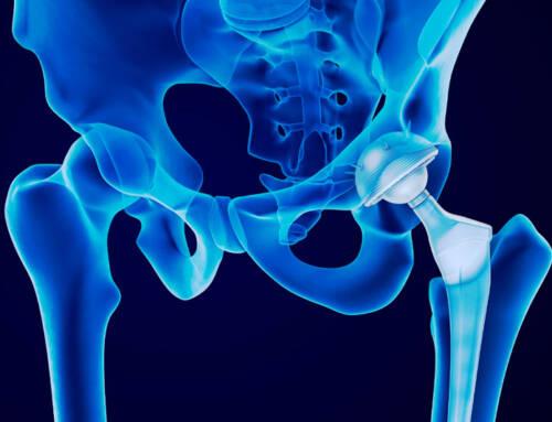 Exercici i entrenament d'enfortiment muscular en pròtesi de maluc